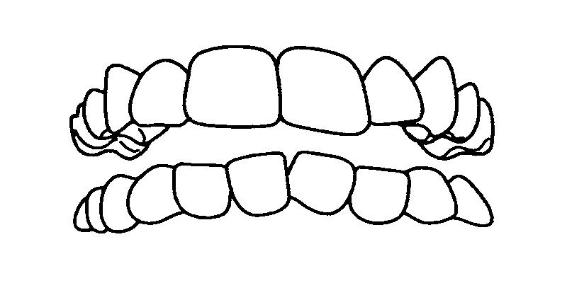 叢生歯(乱ぐい歯)